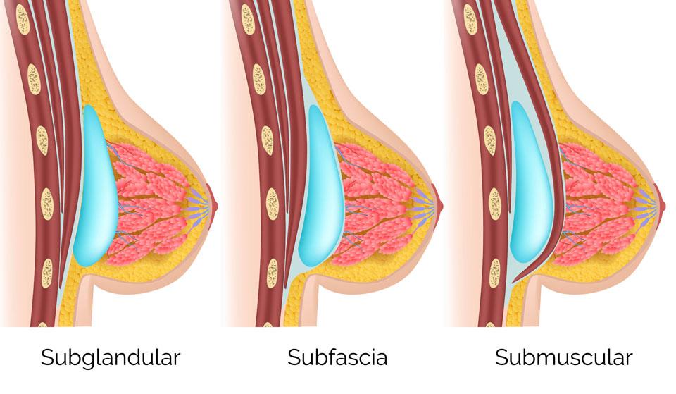 Lugares donde poner la protesis mamaria